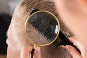 Lice Removal Services in Suffolk County